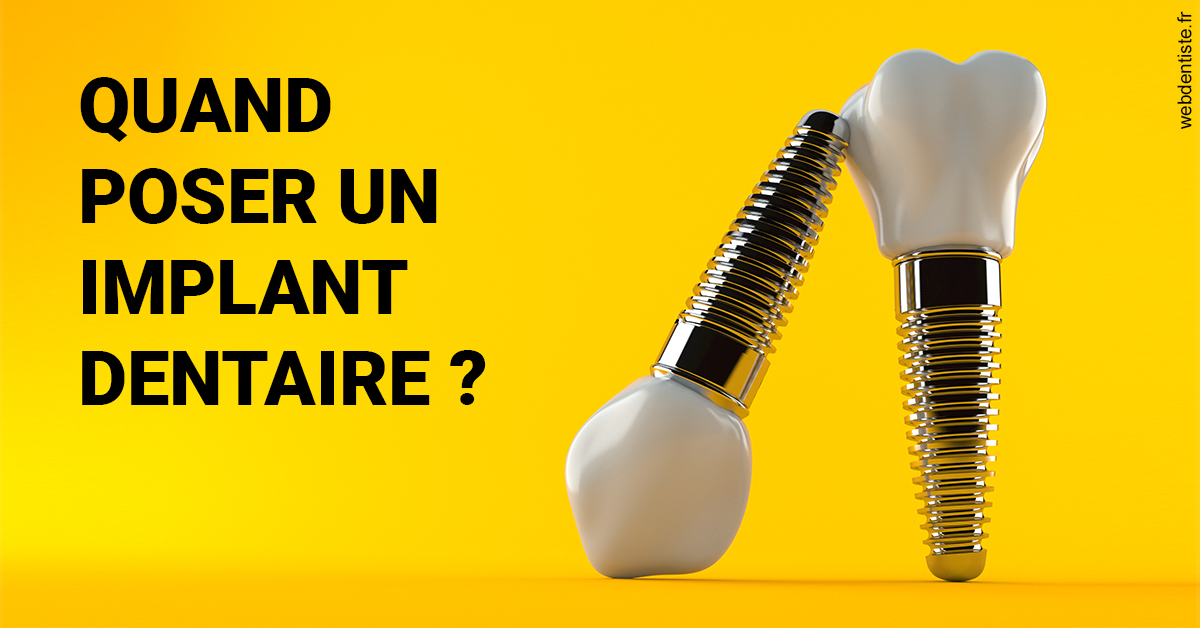 https://dr-ay-ibrahim.chirurgiens-dentistes.fr/Les implants 2