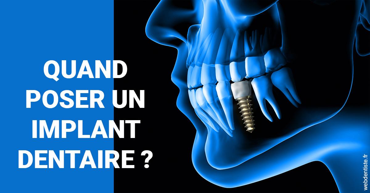 https://dr-ay-ibrahim.chirurgiens-dentistes.fr/Les implants 1